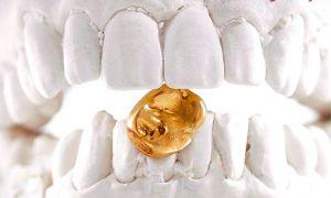 Использование золота в стоматологии: цена за грамм и проба зубной коронки