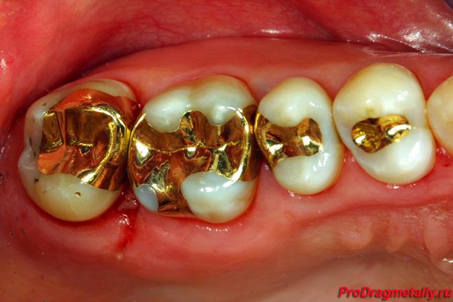 Вкладки золотые