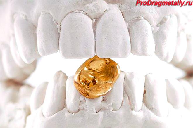 Зубной слепок с золотой коронкой
